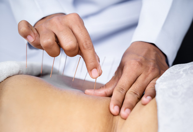 acupuncture and Moxibustion treatment in south delhi